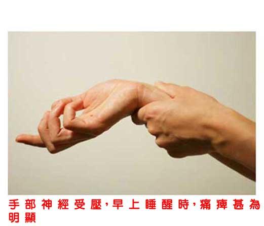 痛症「自療」系列之:腕管綜合症2