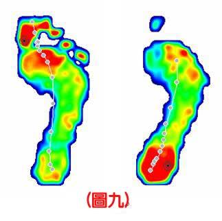 認識不同足患的足底壓力9