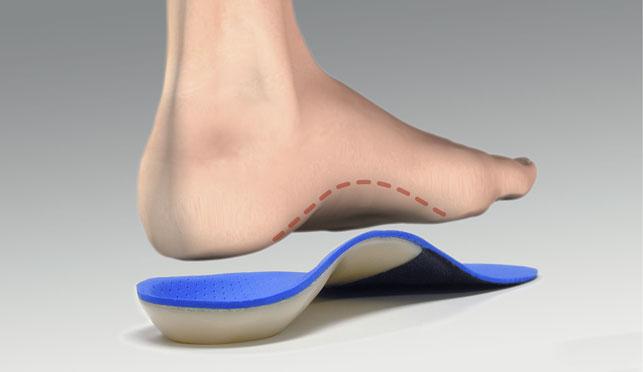 扁平足鞋墊, 足科矯形, 訂造鞋墊, 足部治療師, 矯形師
